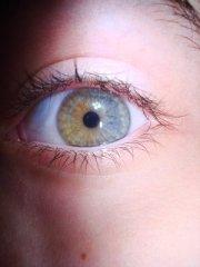 Диагноза хетерохромия Sectoral_heterochromia_by_iamthequam